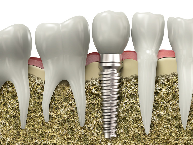 Dental implants image.
