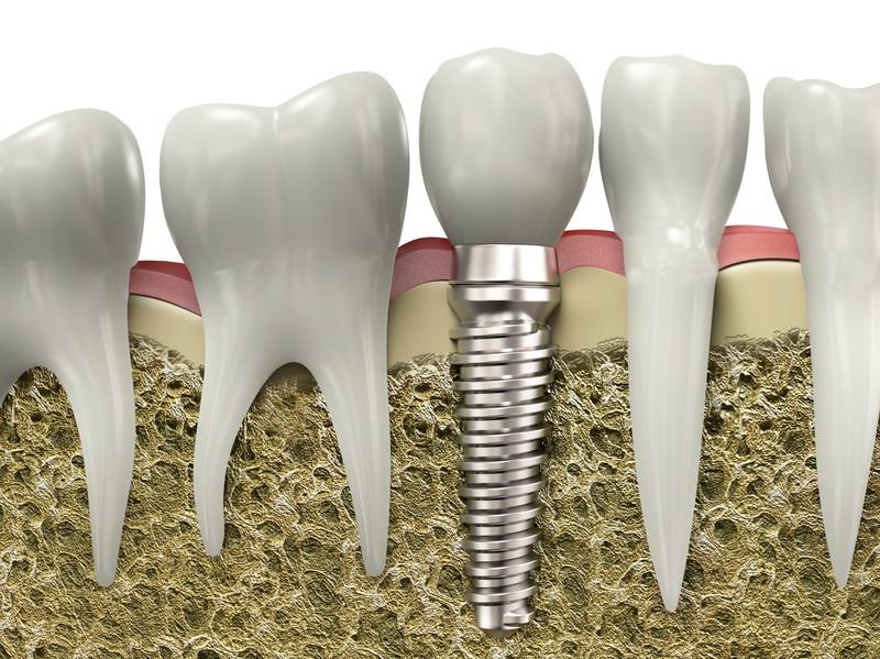 Dental implants image.