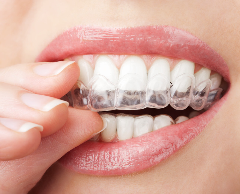 Teeth whitening tray.